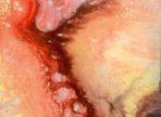 Smíření (2017) akryl na plátně 50x50cm   5 000 Kč